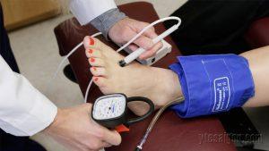 Cách đo huyết áp ở chân chính xác